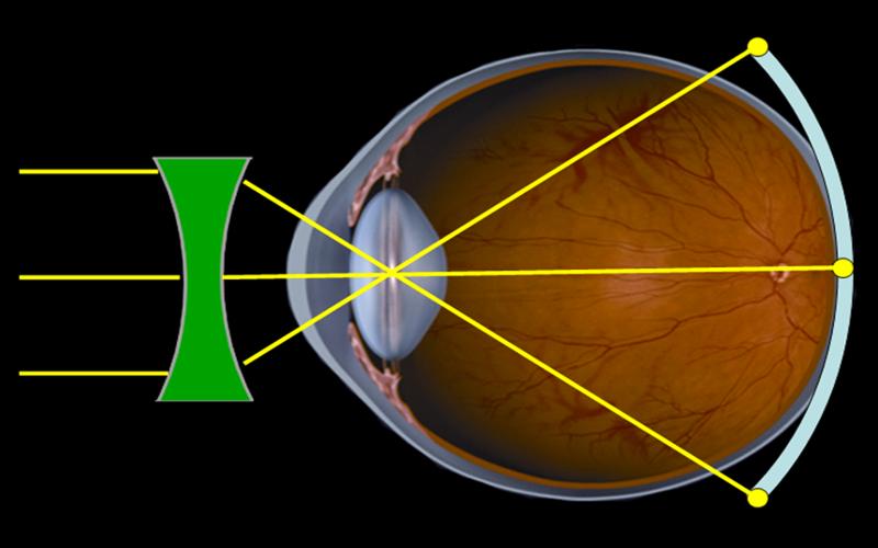 enfoque-con-lentes-NO-Orto-K